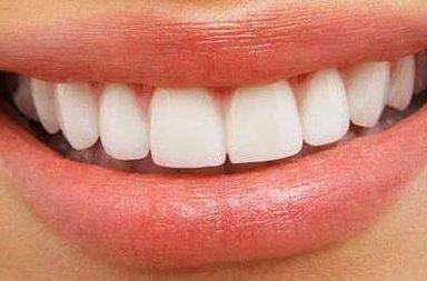 Dentes, Nov13
